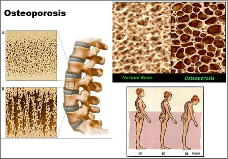 treatment-for-osteoporosis1a